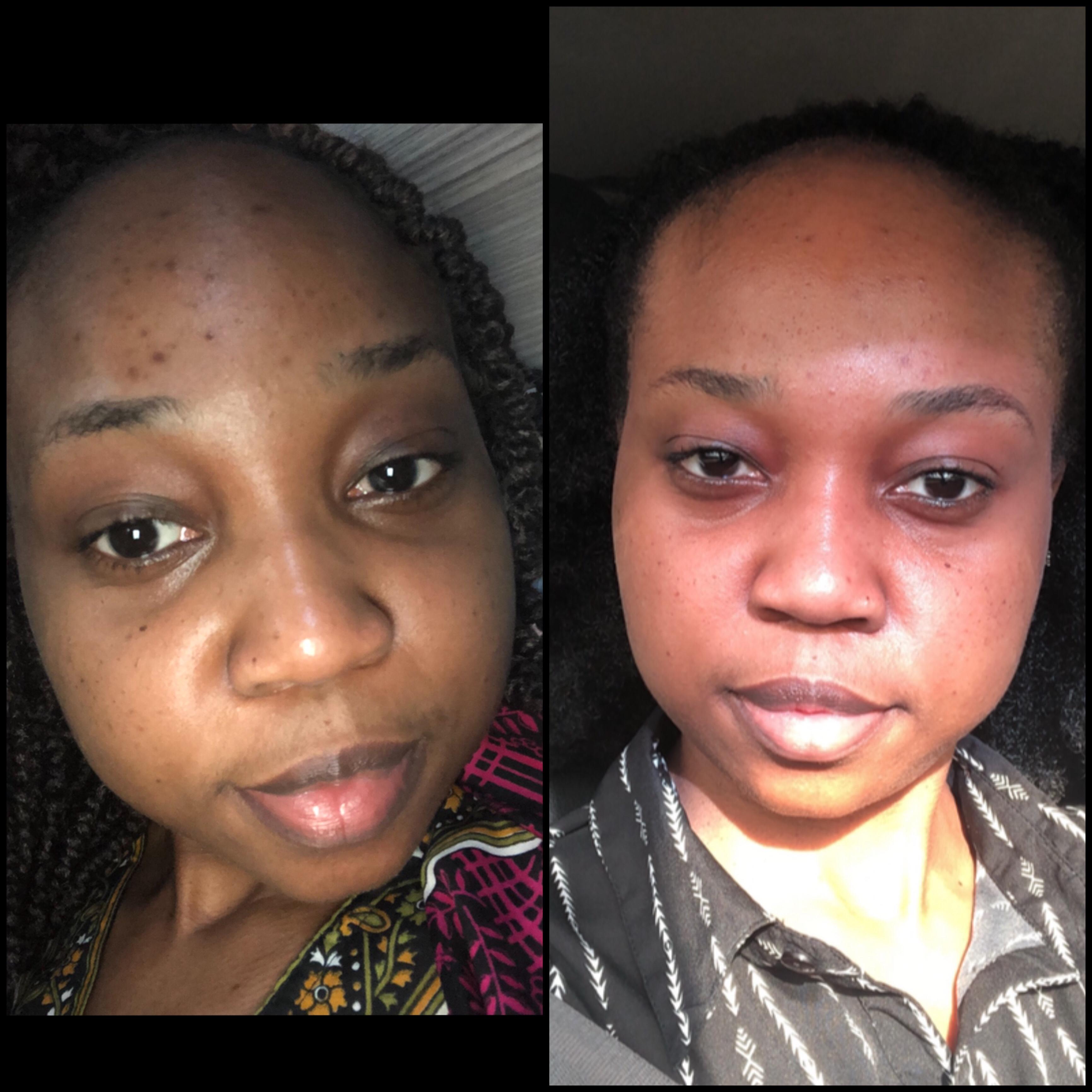 www.mariamshittu.com-shea-moisture-african-black-soap-review_3